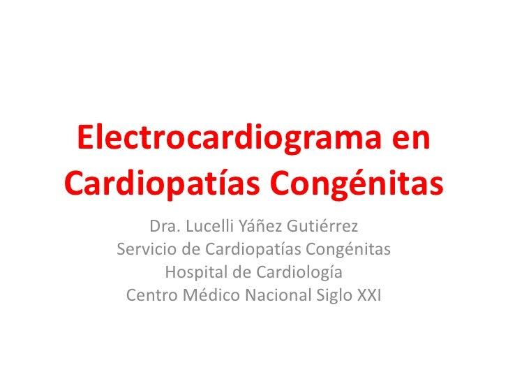 Electrocardiograma enCardiopatías Congénitas       Dra. Lucelli Yáñez Gutiérrez   Servicio de Cardiopatías Congénitas     ...