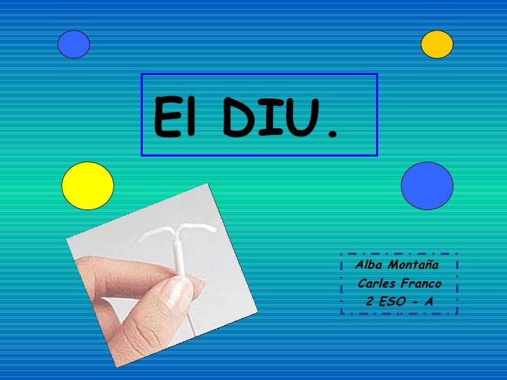 El DIU.  Alba Montaña  Carles Franco 2 ESO - A
