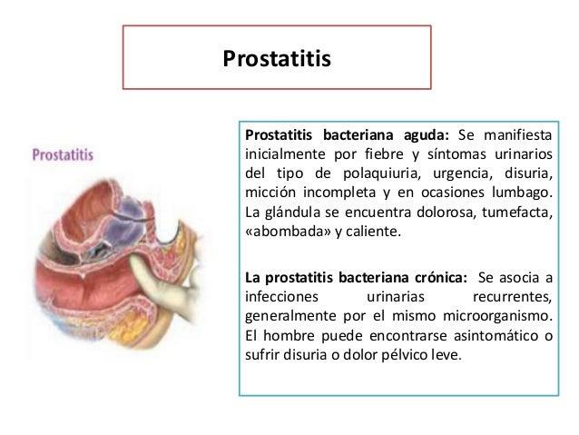Ardor ano prostatitis