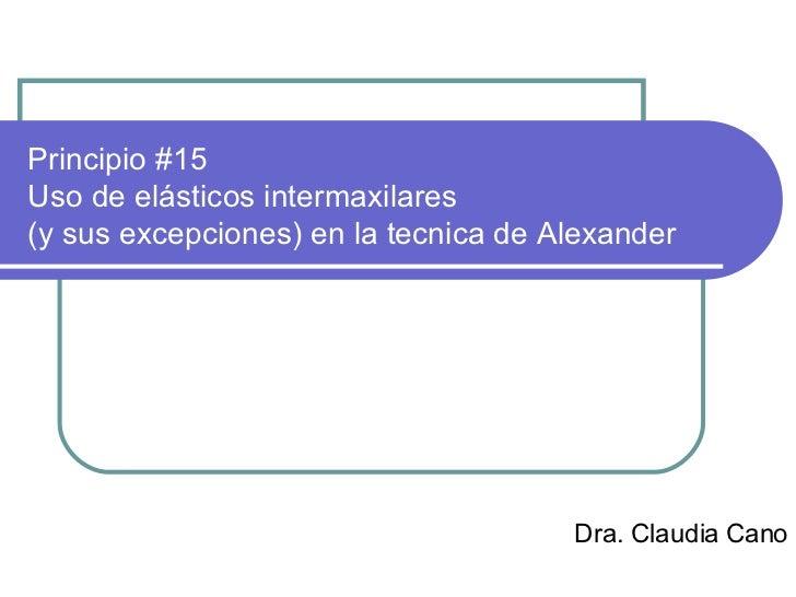 Principio #15 Uso de elásticos intermaxilares (y sus excepciones) en la tecnica de Alexander Dra. Claudia Cano