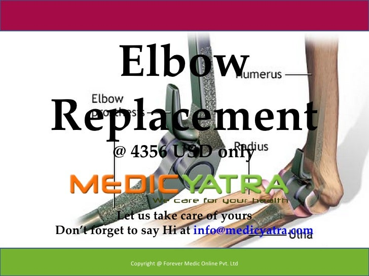ElbowReplacement          @ 4356 USD only          Let us take care of yoursDon't forget to say Hi at info@medicyatra.com ...