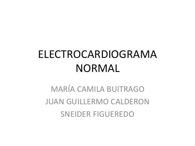 ELECTROCARDIOGRAMA NORMAL MARÍA CAMILA BUITRAGO JUAN GUILLERMO CALDERON SNEIDER FIGUEREDO