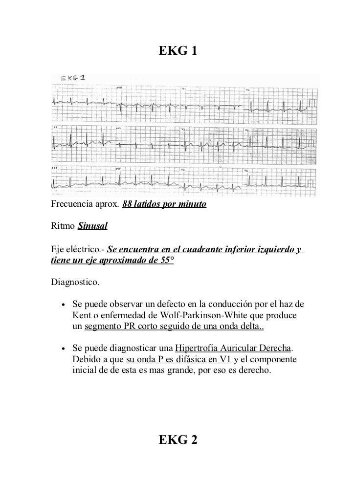 EKG 1Frecuencia aprox. 88 latidos por minutoRitmo SinusalEje eléctrico.- Se encuentra en el cuadrante inferior izquierdo y...