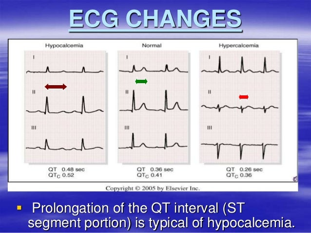 detecting abnormalities in ecg test Detection of abnormalities in fetal by non invasive fetal heart by extracting from the composite abdominal ecg the simple test which is used for this is.