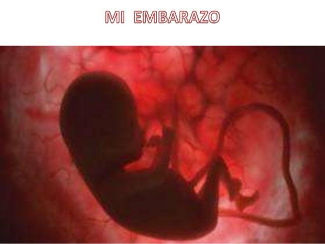 Mis padres se pusieron muy contentos al saber que mi madre estaba embarazada.Mi madre empezó a cuidar su dieta , a beber m...