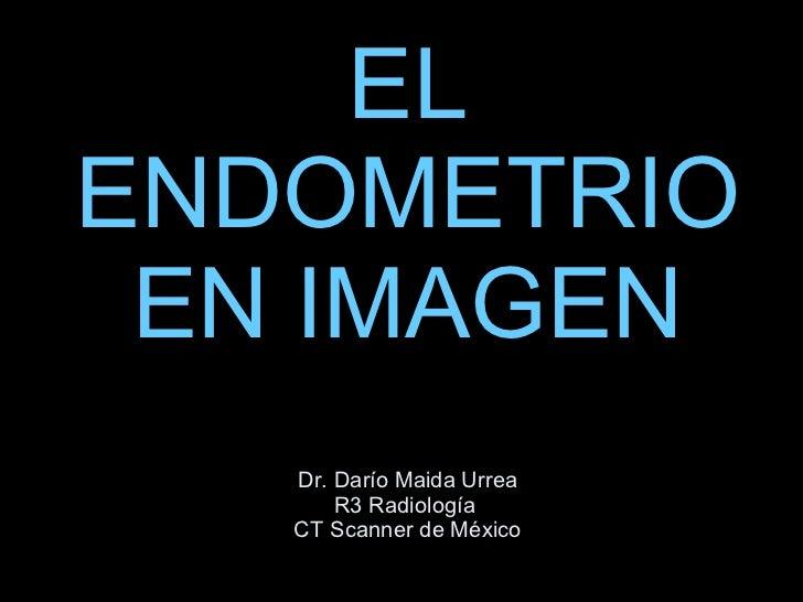 EL ENDOMETRIO EN IMAGEN Dr. Darío Maida Urrea R3 Radiología  CT Scanner de México