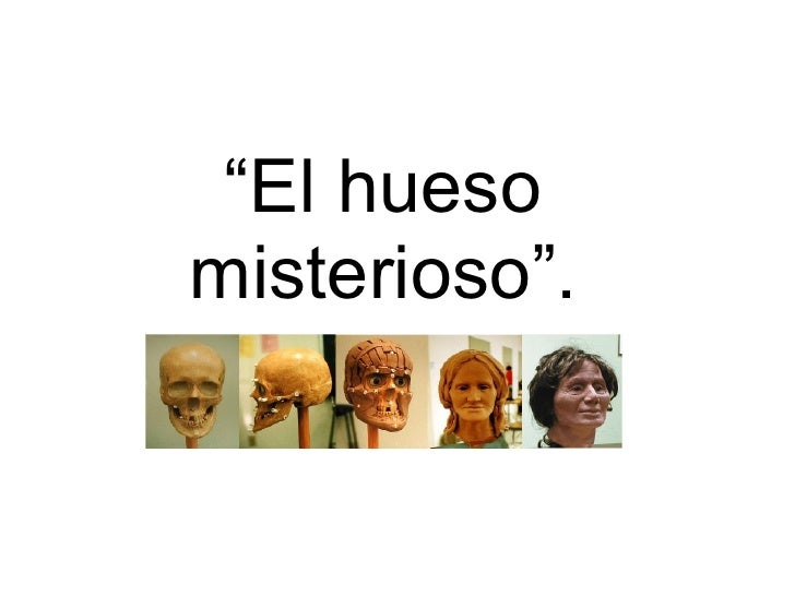 """El huesomisterioso""."