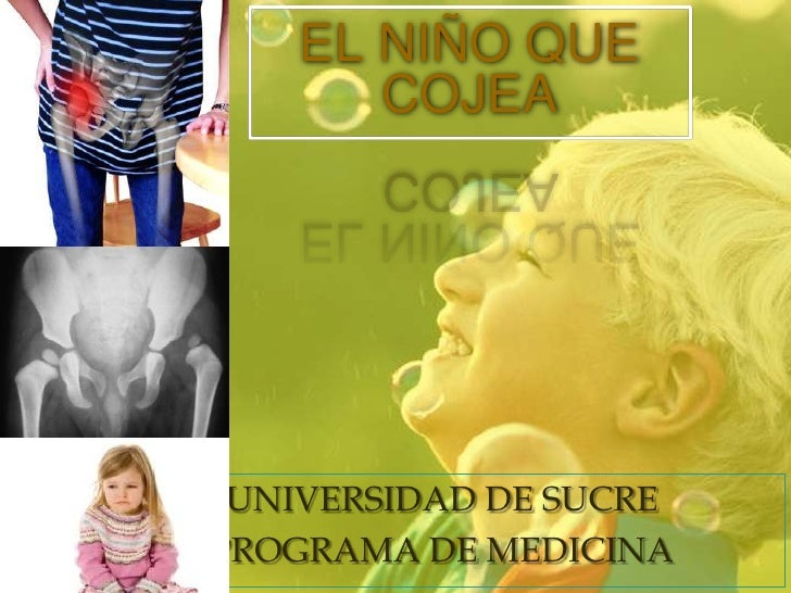 EL NIÑO QUE COJEA<br />UNIVERSIDAD DE SUCRE<br />PROGRAMA DE MEDICINA <br />