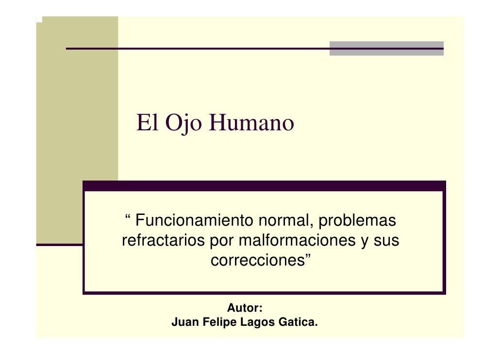 """El Ojo Humano """" Funcionamiento normal, problemasrefractarios por malformaciones y sus             correcciones""""           ..."""