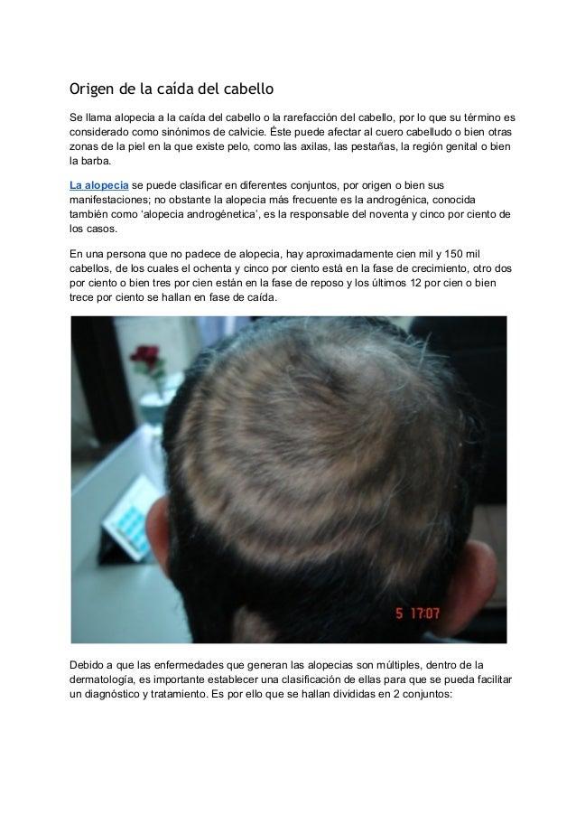 Origen de la caída del cabello  Se llama alopecia a la caída del cabello o la rarefacción del cabello, por lo que su térmi...