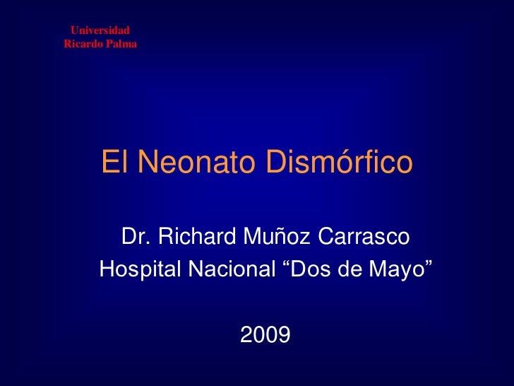"""Universidad <br />Ricardo Palma<br />El Neonato Dismórfico <br />Dr. Richard Muñoz Carrasco<br />Hospital Nacional """"Dos de..."""