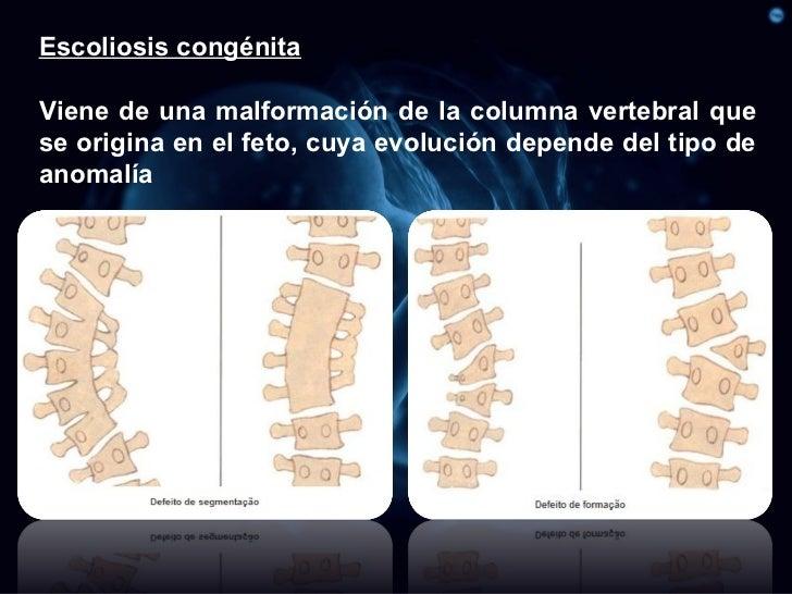 El dolor en sheynom el departamento de la columna vertebral al embarazo