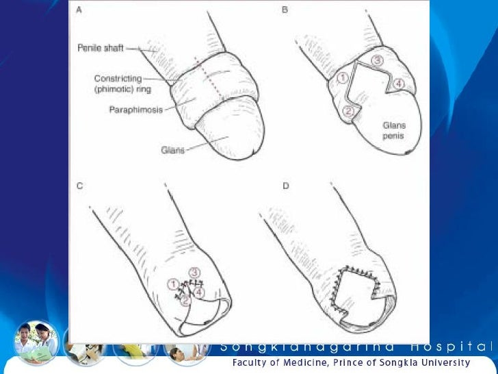 Phimosis And Paraphimosis Manual Guide