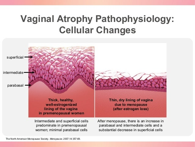 vaginal atrophy related to menopause Postmenopausal atrophic vaginitis, or vaginal atrophy, is the thinning of the walls  of the vagina caused by decreased estrogen levels this most commonly.