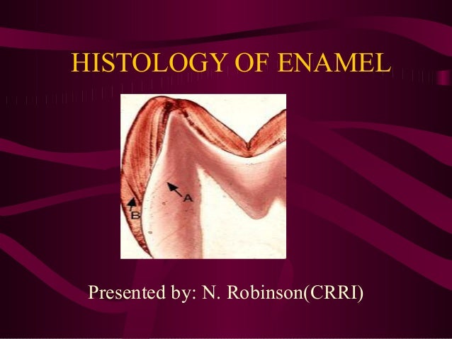 HISTOLOGY OF ENAMELPresented by: N. Robinson(CRRI)
