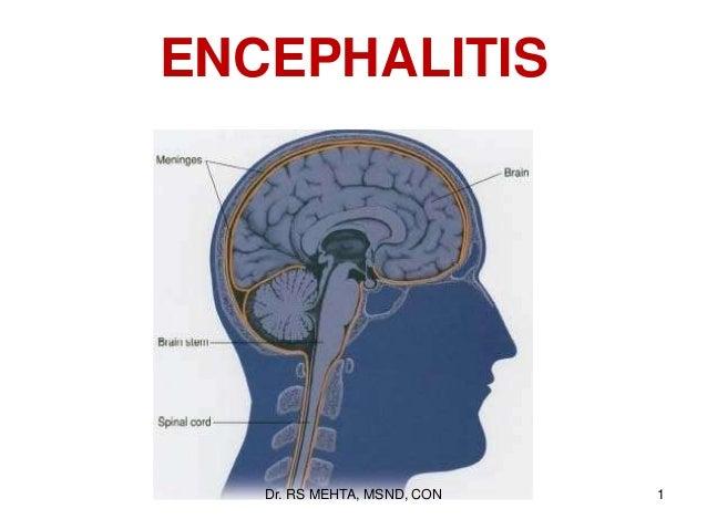 ENCEPHALITIS  Dr. RS MEHTA, MSND, CON  1