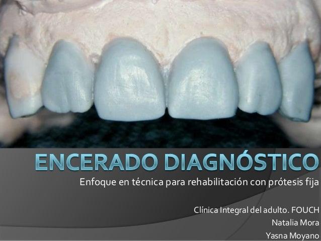 Enfoque en técnica para rehabilitación con prótesis fija                          Clínica Integral del adulto. FOUCH      ...