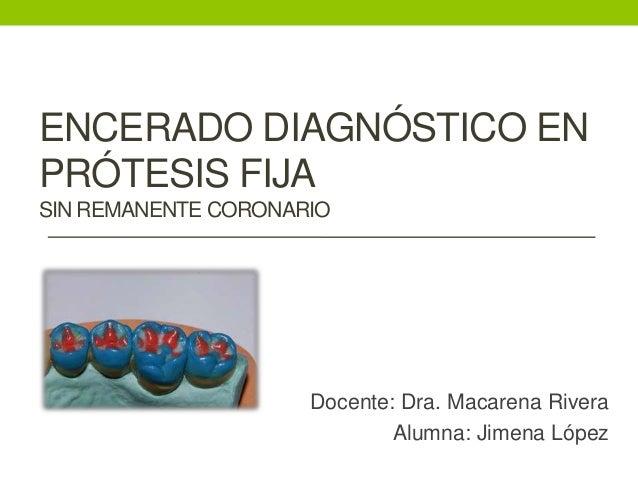 ENCERADO DIAGNÓSTICO ENPRÓTESIS FIJASIN REMANENTE CORONARIO                     Docente: Dra. Macarena Rivera             ...