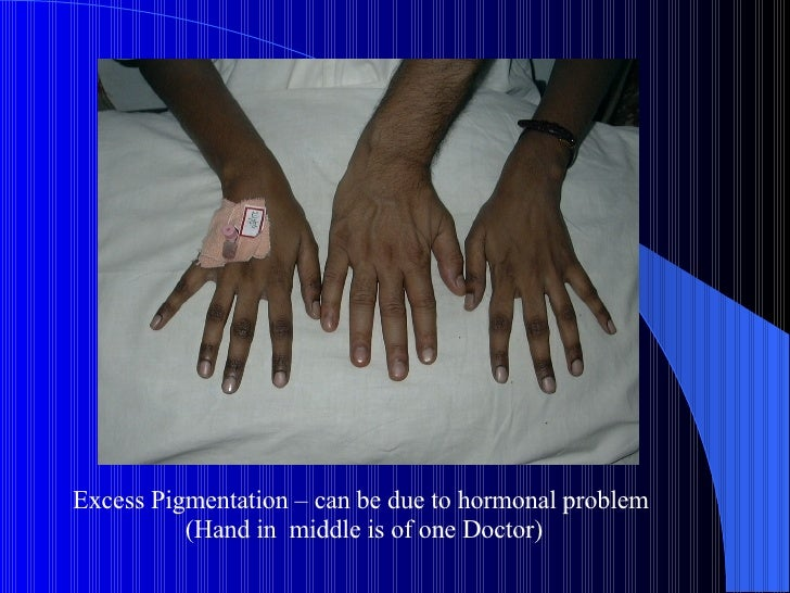 Excess Pigmentation – can be due to hormonal problem  (Hand in  middle is of one Doctor)