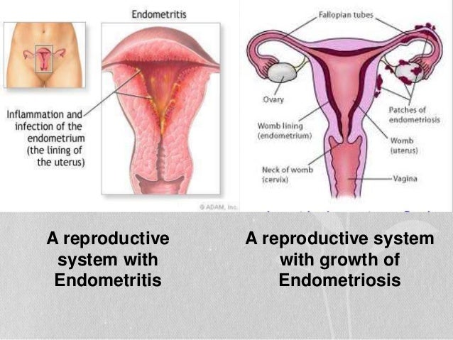 Эндометрит и секс