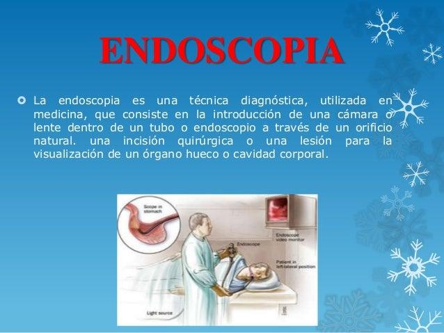 ENDOSCOPIA  La endoscopia es una técnica diagnóstica, utilizada en medicina, que consiste en la introducción de una cámar...