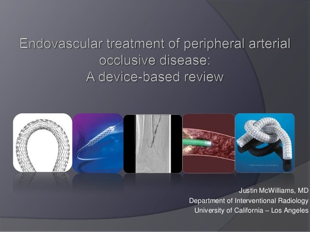 Endovascular therapy - device based review