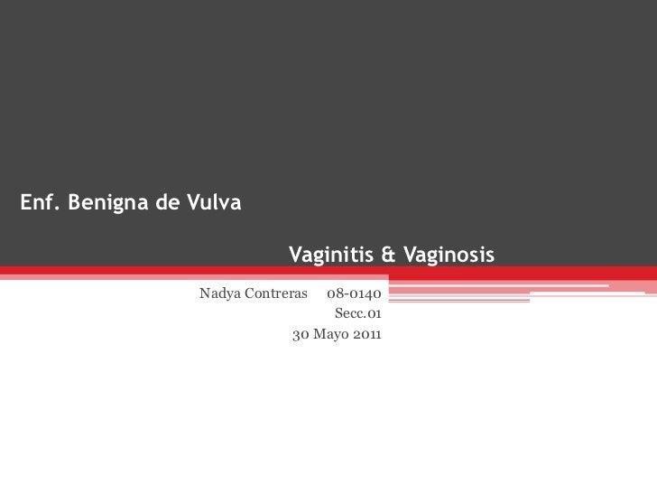 Enf. Benigna de Vulva                             Vaginitis & Vaginosis                 Nadya Contreras 08-0140           ...