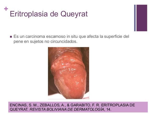De que no debe hacer a la psoriasis