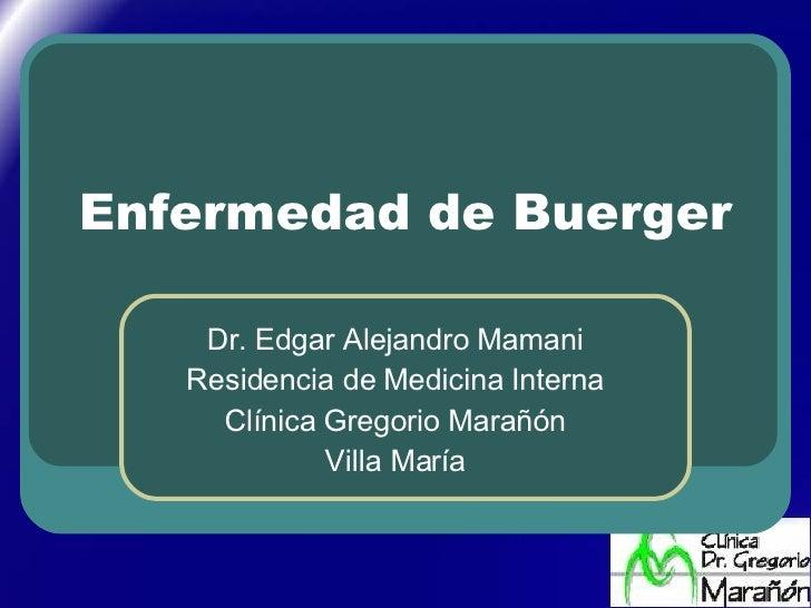 Enfermedad de Buerger Dr. Edgar Alejandro Mamani Residencia de Medicina Interna Clínica Gregorio Marañón Villa María