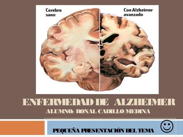 ENFERMEDADDE ALZHEIMER ALUMNO: RONAL CADILLO MEDINA PEQUEÑA PRESENTACIÓN DEL TEMA 