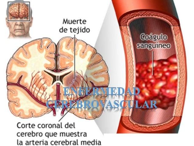ENFERMEDAD CEREBROVASCULAR Afección Pérdida funcional Transitoria Permanente SNC Aparición súbita Trombótica Embolica Vaso...