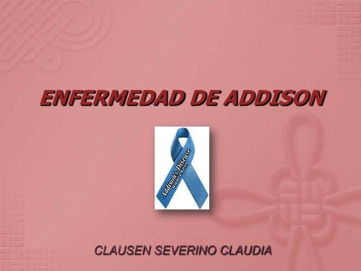 ENFERMEDAD DE ADDISON    CLAUSEN SEVERINO CLAUDIA
