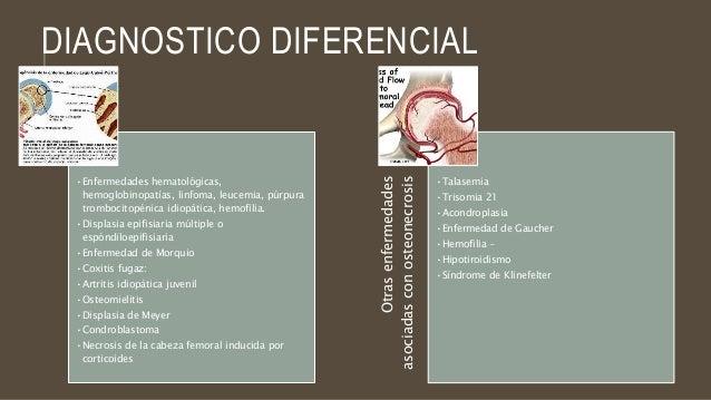 La cultura física a la osteocondrosis de la articulación de la rodilla