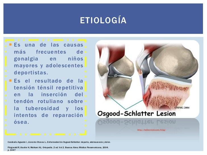 El tratamiento de la columna vertebral en talalihina
