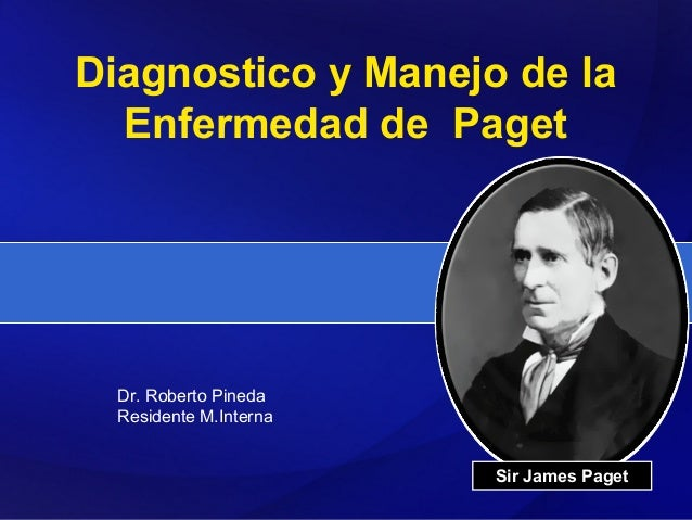 Diagnostico y Manejo de la  Enfermedad de Paget  Dr. Roberto Pineda  Residente M.Interna                        Sir James ...