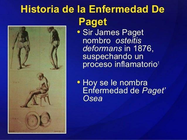 La enfermedad de paget fotos