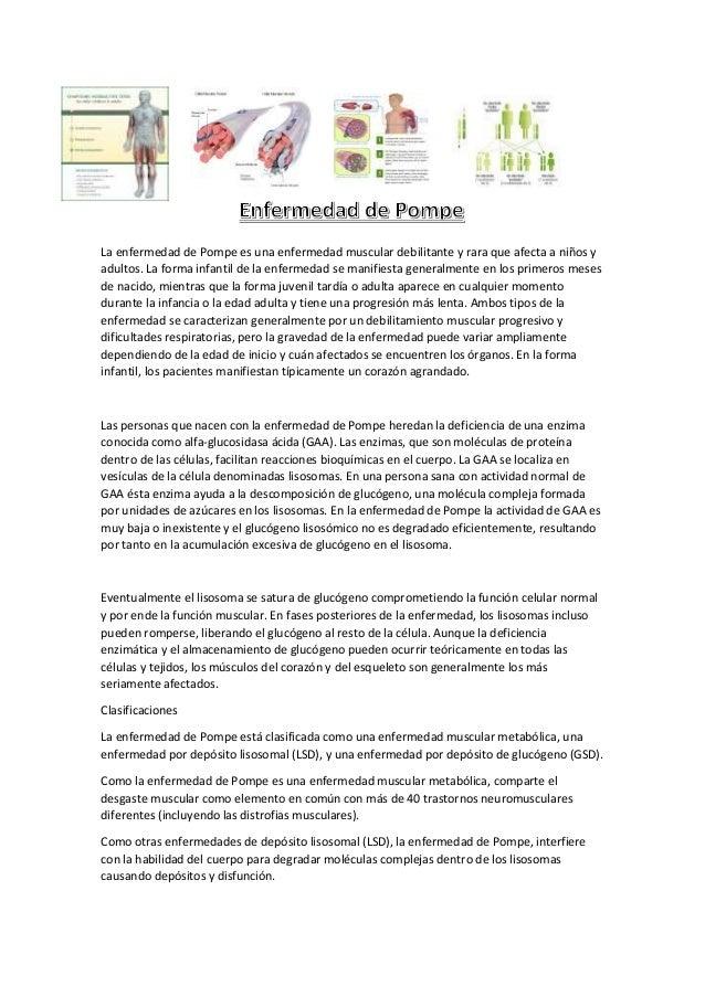La enfermedad de Pompe es una enfermedad muscular debilitante y rara que afecta a niños y adultos. La forma infantil de la...