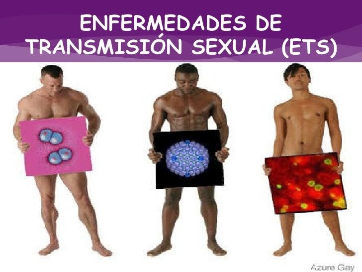 enfermedad sexual: