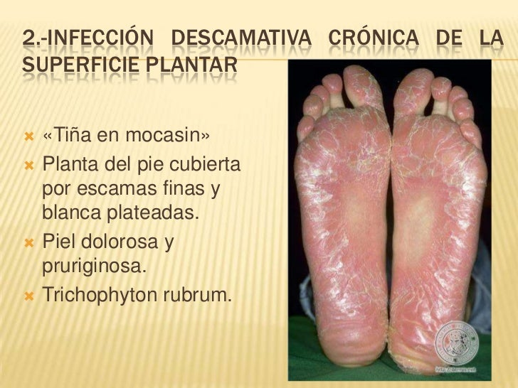 El hongo entre los dedos de los pies al niño