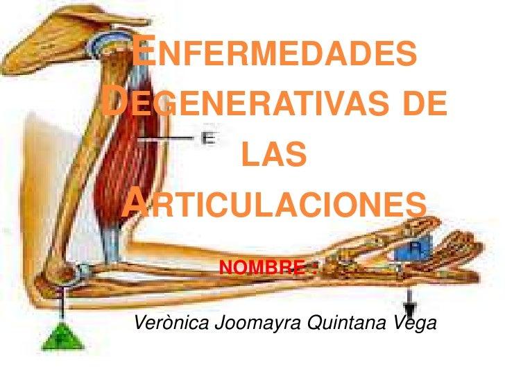 Enfermedades Degenerativas de las Articulaciones<br />NOMBRE :<br />VerònicaJoomayra Quintana Vega<br />