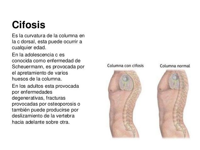 Que fijan para la anestesia de la osteocondrosis