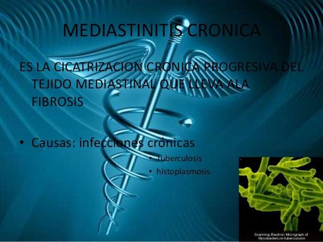 Nesteroidnye los analgésicos a la osteocondrosis de pecho