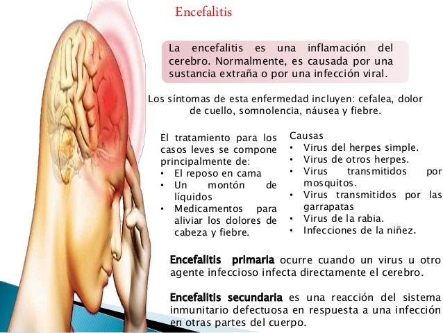 La osteocondrosis del departamento lumbosacro de la columna vertebral el tratamiento que este tal