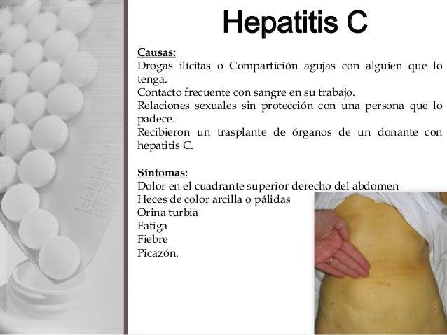 Секс и гепатит с 12