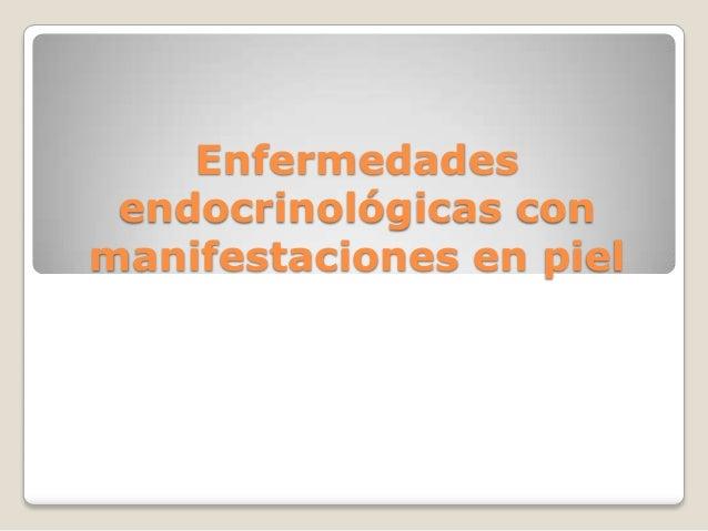 Enfermedades endocrinológicas con manifestaciones en piel