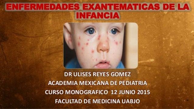 ENFERMEDADES EXANTEMATICAS DE LA INFANCIA DR ULISES REYES GOMEZ ACADEMIA MEXICANA DE PEDIATRIA CURSO MONOGRAFICO 12 JUNIO ...