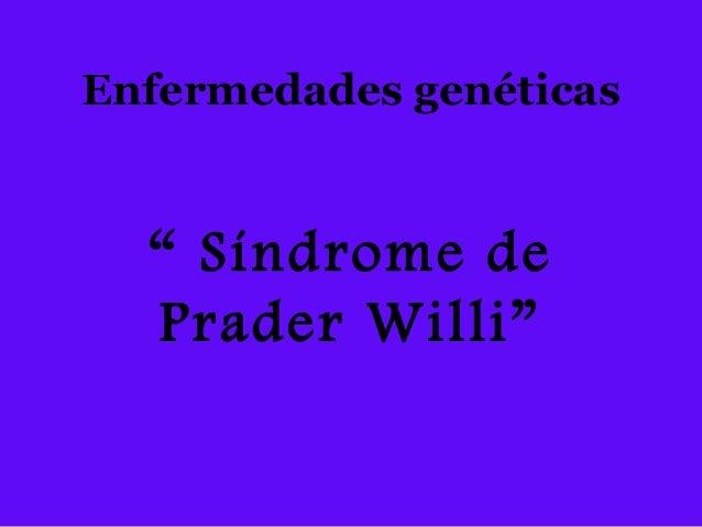 """Enfermedades genéticas """" Síndrome de Prader Willi"""""""