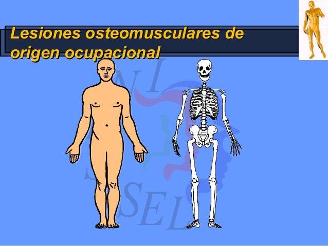 Lesiones osteomusculares deLesiones osteomusculares de origen ocupacionalorigen ocupacional