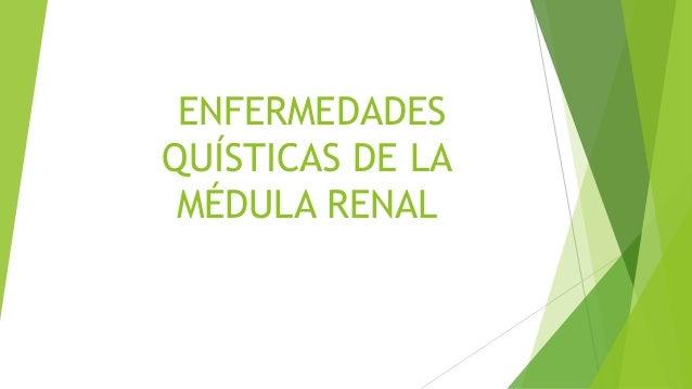 ENFERMEDADES  QUÍSTICAS DE LA  MÉDULA RENAL