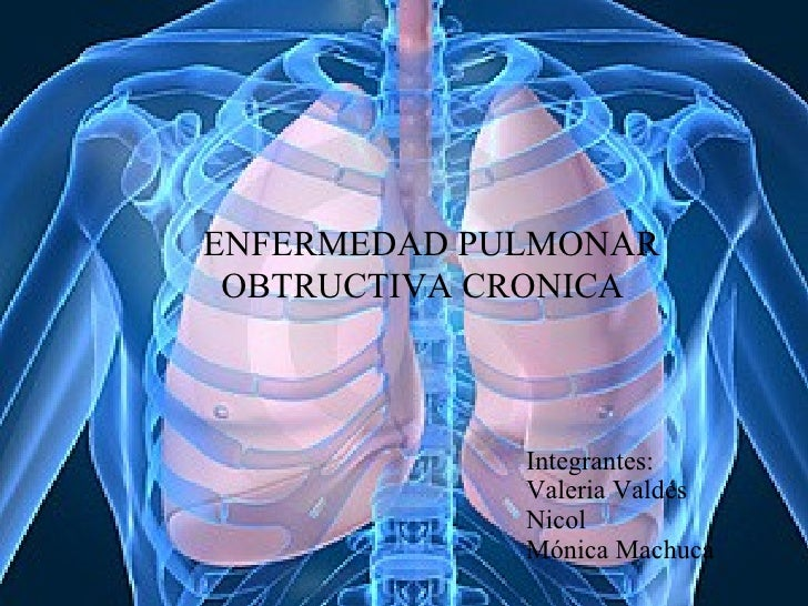 Enfermedad pulmonar